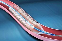 SUS inclui stent farmacológico para prevenir infarto em diabéticos
