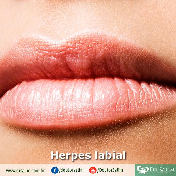 Você tem herpes labial?