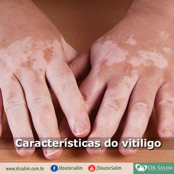 Características do vitiligo