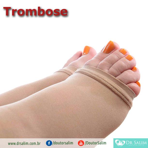 Quem precisa usar meia de compressão para evitar trombose?