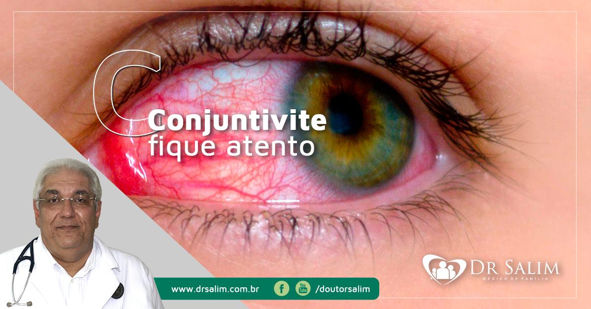 Conjuntivite: lave os olhos com soro gelado e procure o médico