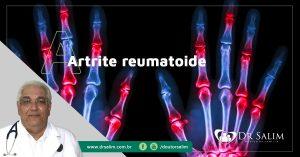 Quais-os-tratamentos-mais-atuais-da-Artrite-reumatoide-por-Dr-salim