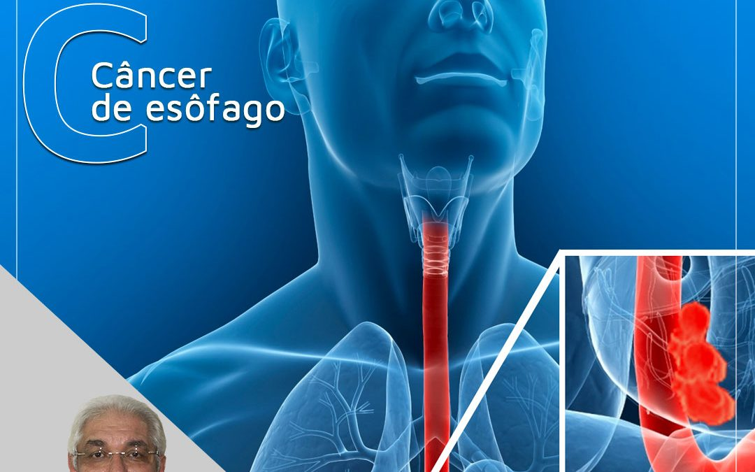 Câncer de esôfago: o que é?