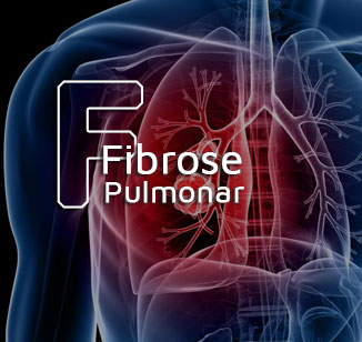 Fibrose pulmonar: o que é?