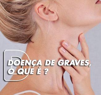 Doença de Graves: o que é