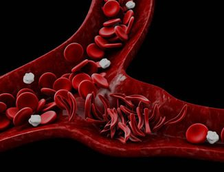 Anemia falciforme: o que é, prevenção e tratamento