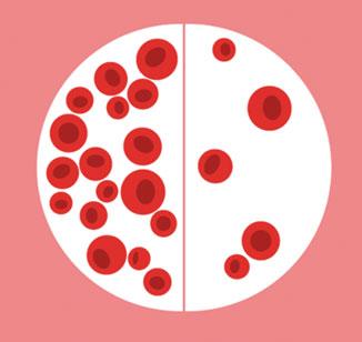 Anemia por deficiência de vitamina B12 e ácido fólico (megaloblástica)