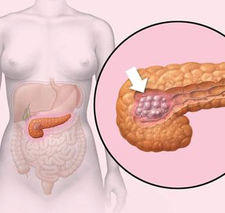 Câncer de pâncreas: causas, sintomas e tratamento