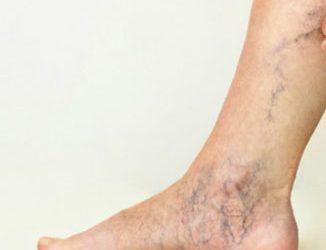 Trombose venosa profunda: causas, sintomas e tratamento