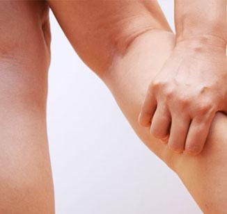 Edema (inchaço) nas pernas