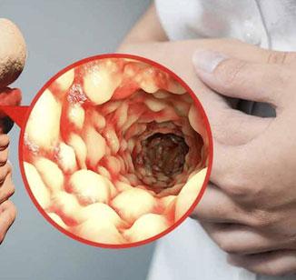 Doença de Crohn
