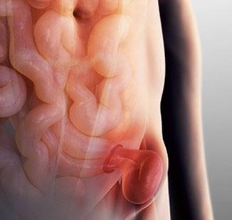 Hérnia inguinal: como é a cirurgia?