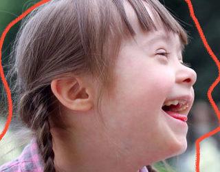 Síndrome de Down: possíveis causas