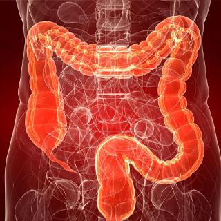 Retocolite ulcerativa: o que é?