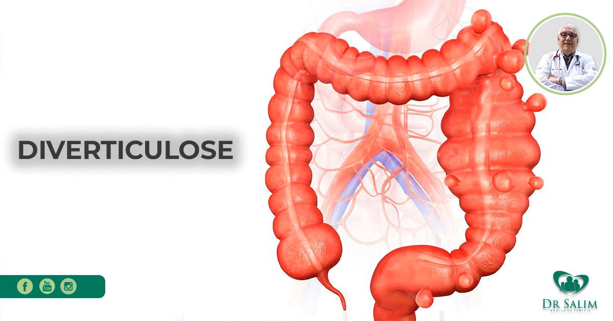 A imagem mostra uma ilustração do intestino com algumas bolinhas, ou seja, saliências.